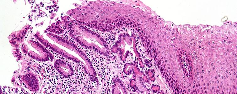 metaplasia celomica endometriosis